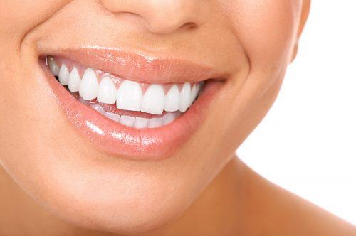 Dental Crowns & Dental Bridges | New Orleans Dentist | 7 O'Clock Dental