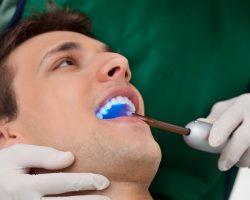 Dental Cleanings & Dental Exams   New Orleans Dentist   7 O'Clock Dental