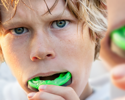 Athletic Mouthguards | New Orleans Dentist | 7 O'Clock Dental